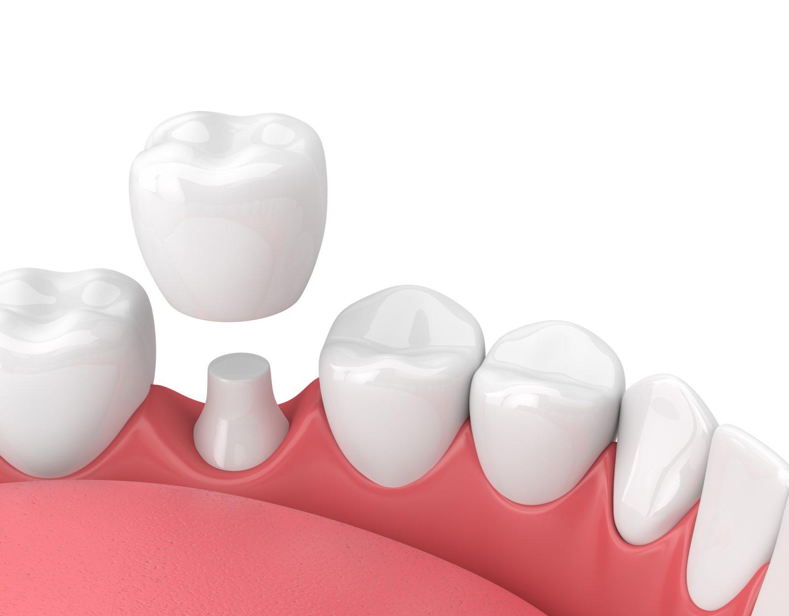 Implant dentaire : quelles sont les contres indications ?