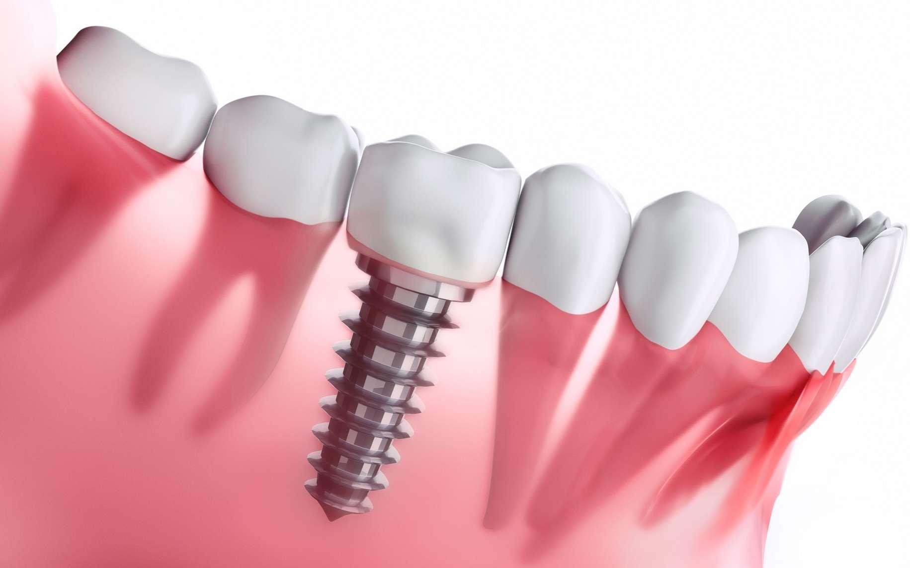 Implant dentaire : quelles sont les contres indications de ces prothèses dentaires ?